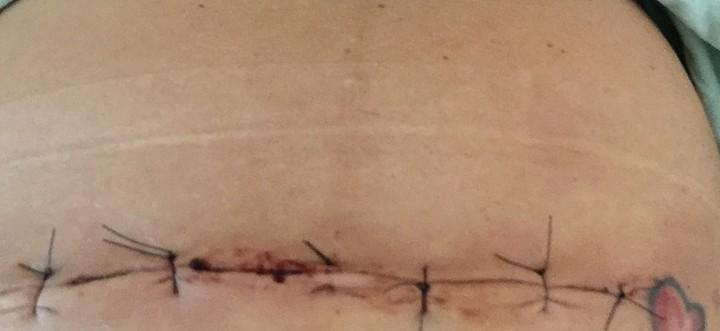 Liječenje ožiljka nakon carskog reza