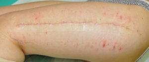 korekcija oziljaka nakon operacije