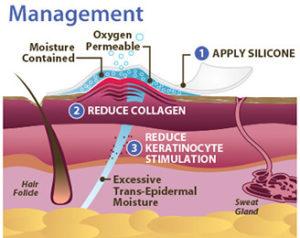 Način rada silikonskog flastera za ožiljke